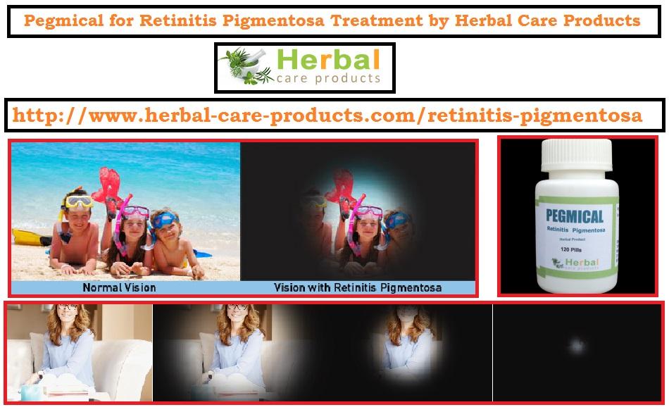 Natural Treatment for Retinitis Pigmentosa