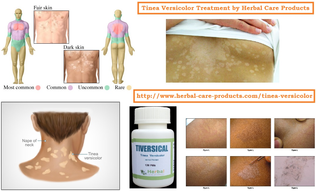Tinea natural treatment